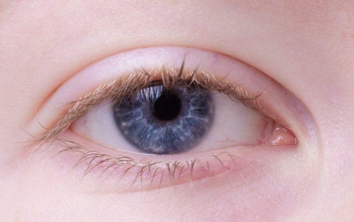 Opuchnięte powieki – jak się ich pozbyć?