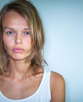 Likwidacja przebarwień przy pomocy profesjonalnych zabiegów kosmetycznych